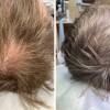 Выпадение волос повод обратиться к врачу