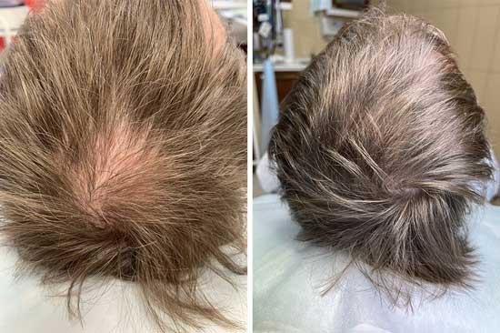 На фото лечение облысения на голове до лечения и после